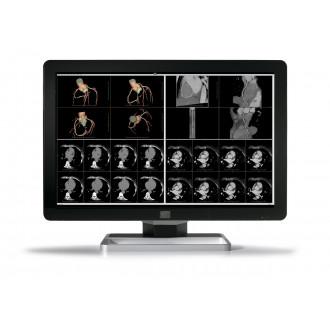 Монитор медицинский Coronis Fusion 6MP LED MDCC-6430 в