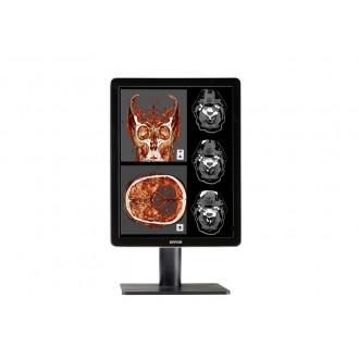 Монитор медицинский Nio Color 2MP LED MDNC-2221 в