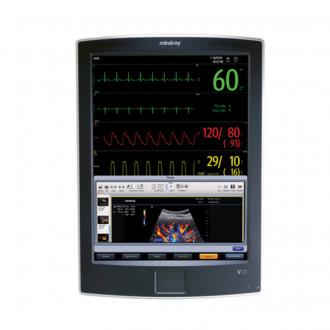 Монитор пациента V21 в