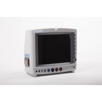 Монитор критических состояний со встроенным экраном Виталан в